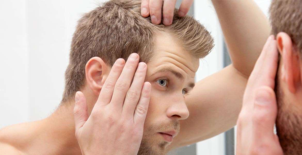 Hair Loss Products Top 10 Rankings