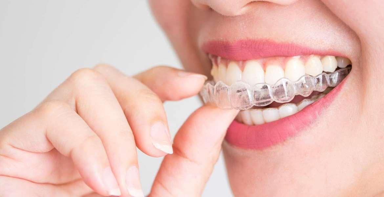 Teeth Grinding Protector Top 10 Rankings